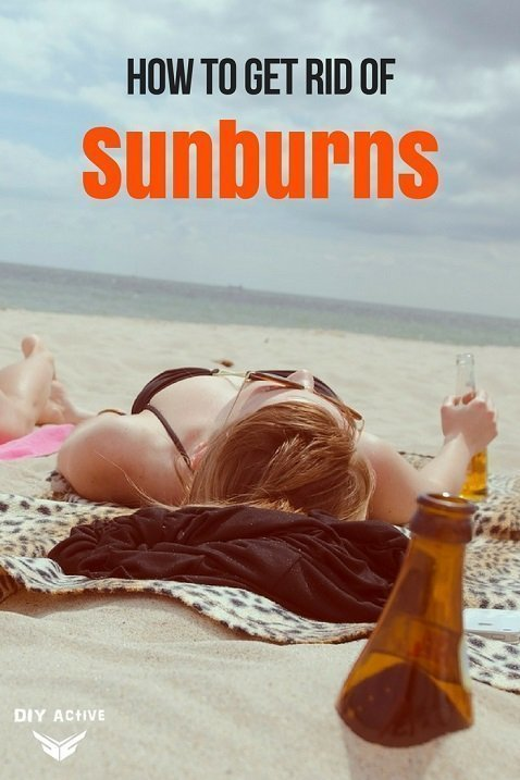How to Get Rid of Sunburns Top 5 Home Remedies DIY