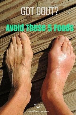 gout, gout symptoms, nutrition for gout
