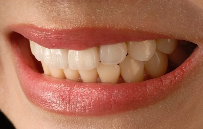 What Are The Worst Foods For Your Teeth
