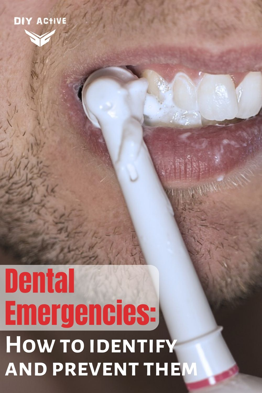 Dental Emergencies: How To Identify And Prevent Them