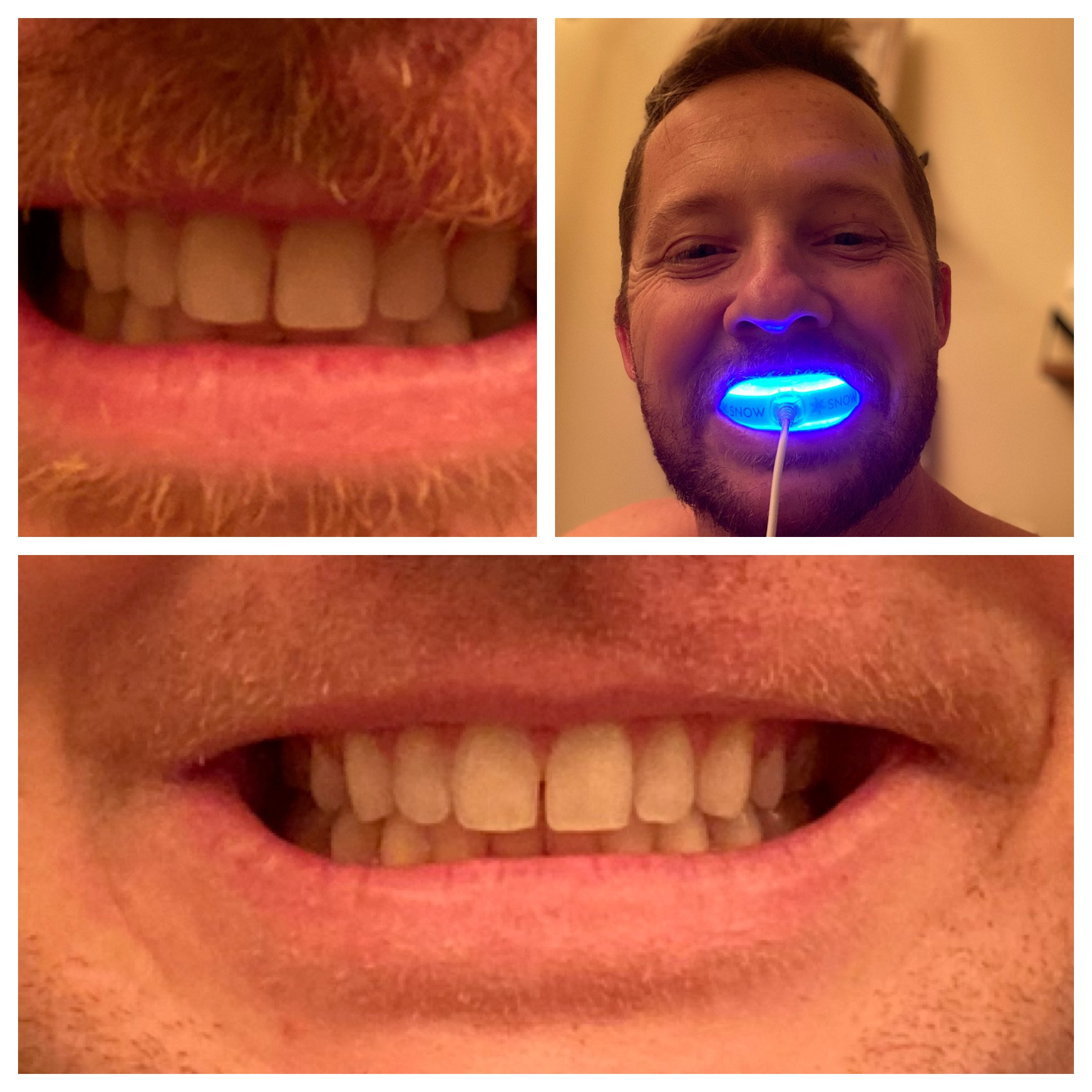 The SNOW Review Whiten Your Teeth Quickly and Easily