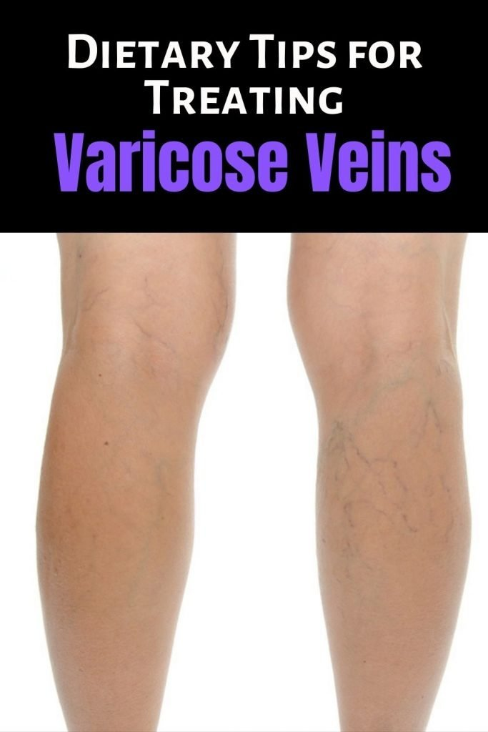 Dietary Tips for Treating Varicose Veins Faster Today