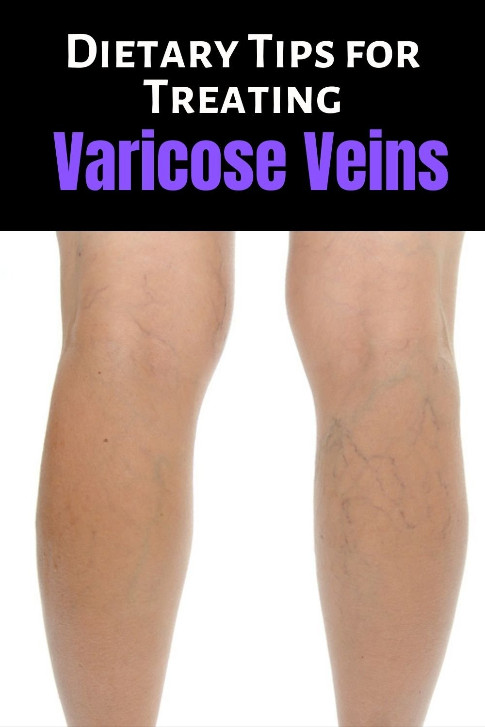 Dietary Tips for Treating Varicose Veins Faster