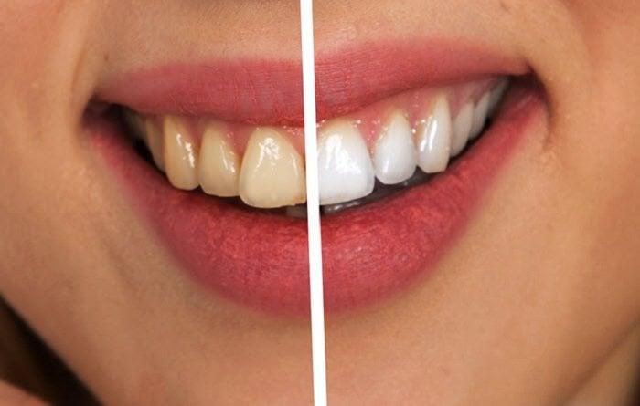 Best Teeth Whitening Kit GLO Science Vs. SNOW